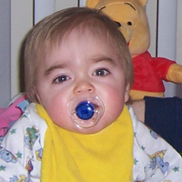 Hurler Syndrome Pictures